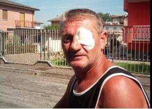 Custode della discarica picchiato da due muratori