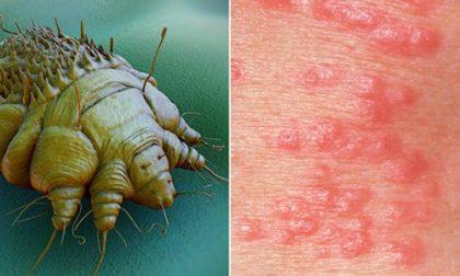 Scabbia a scuola, infettati tre studenti