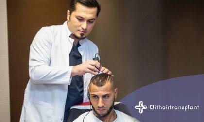 Gli italiani scelgono Istanbul per il trapianto di capelli: il motivo è il costo