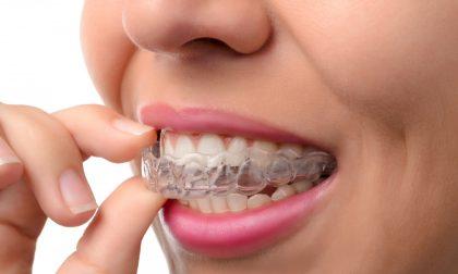 Ortodonzia per adulti: non è mai troppo tardi per tornare a sorridere al meglio